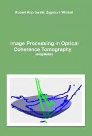 Image Processing in Optical Coherence Tomography Using Matlab